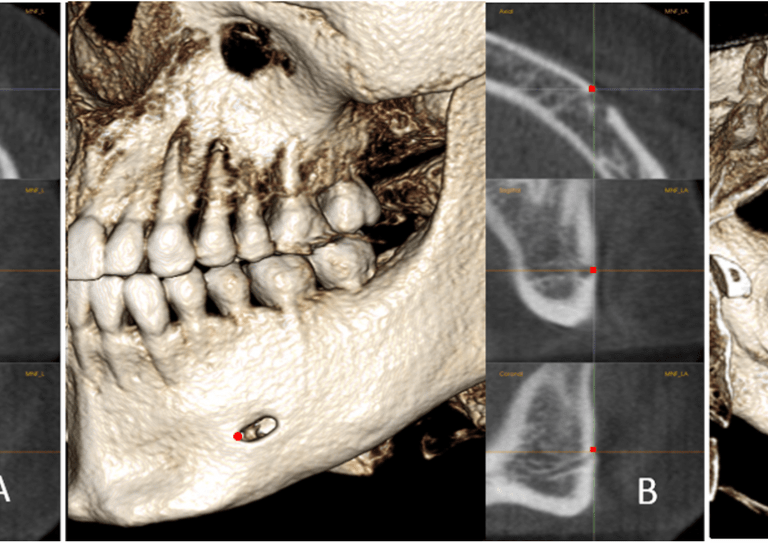 The positions of MF, MFA, and MdF on the left side: a, MF is located in center of the mental foramen; b, MFA is the most anterior point of the mental foramen; c, MdF is located in the center of the mandibular foramen. It is placed on the first slice where the canal shows a complete circle from superior to inferior